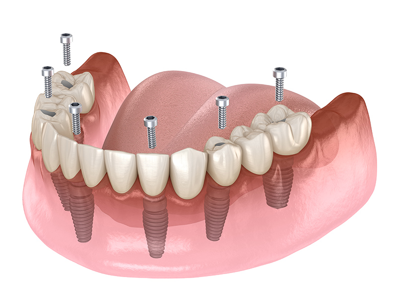 About Dentures and Partial Denture Repair